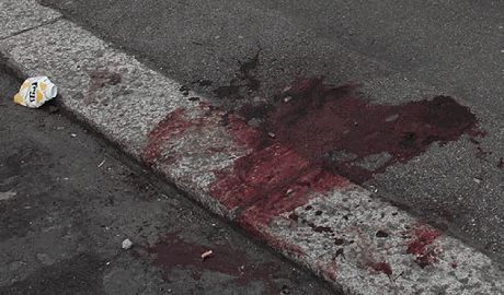 Кавказцы, прямо на глазах у детей, зверски избили битами троих нижегородцев ФОТО