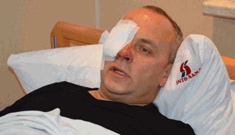 Шуфрич сам организовал свое избиение