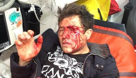 В Киеве совершено покушение на шоумена Андрея Джеджулу