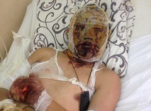 Россия отказалась от бурята, которого проведал в больнице Кобзон