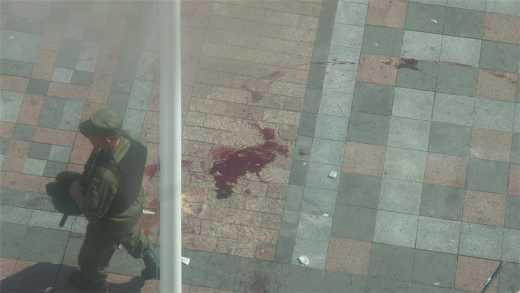 Скончался еще один нацгвардеец, раненный под Радой