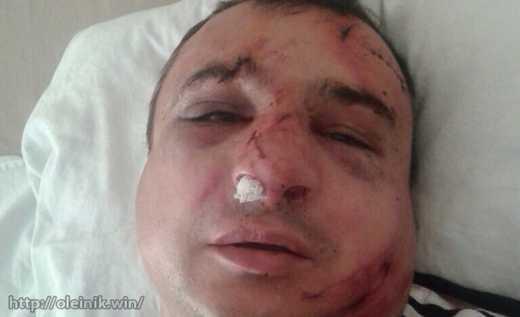 В Киеве избили известного луганского сепаратиста