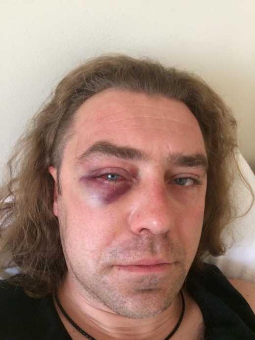 Ігор Мірошниченко розказав шокуючу правду про бійку з коханцем екс-дружини