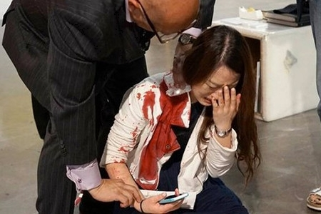 На виставці сучасного мистецтва ножове поранення сприйняли за перформенс