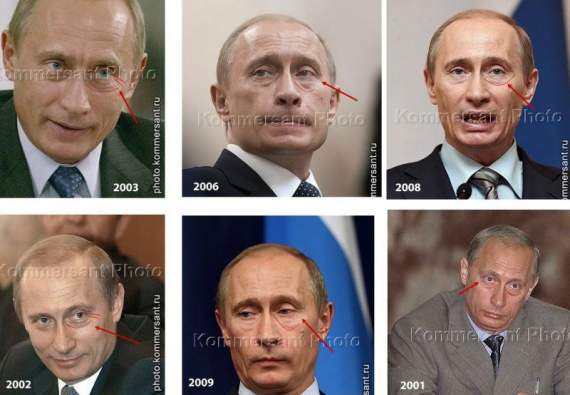 Альцгеймер нанес визит Путину