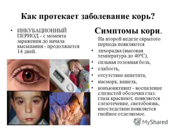 Украинцев предупредили о пандемии кори