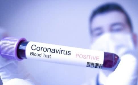 В СНБО объяснили, кто больше всего рискует заразиться коронавирусом