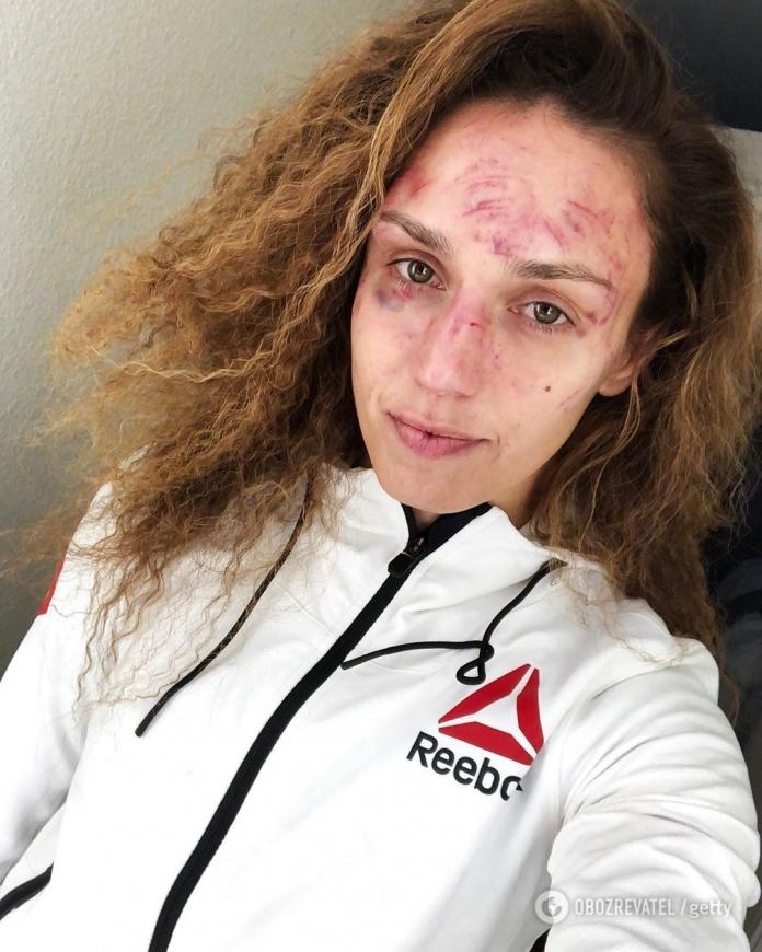 Девушка-боец UFC показала свое лицо после 45 пропущенных ударов
