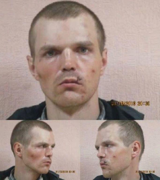 Из тюрьмы «ДНР» сбежал дважды пленный украинец Синченко: террористы подвергали его пыткам