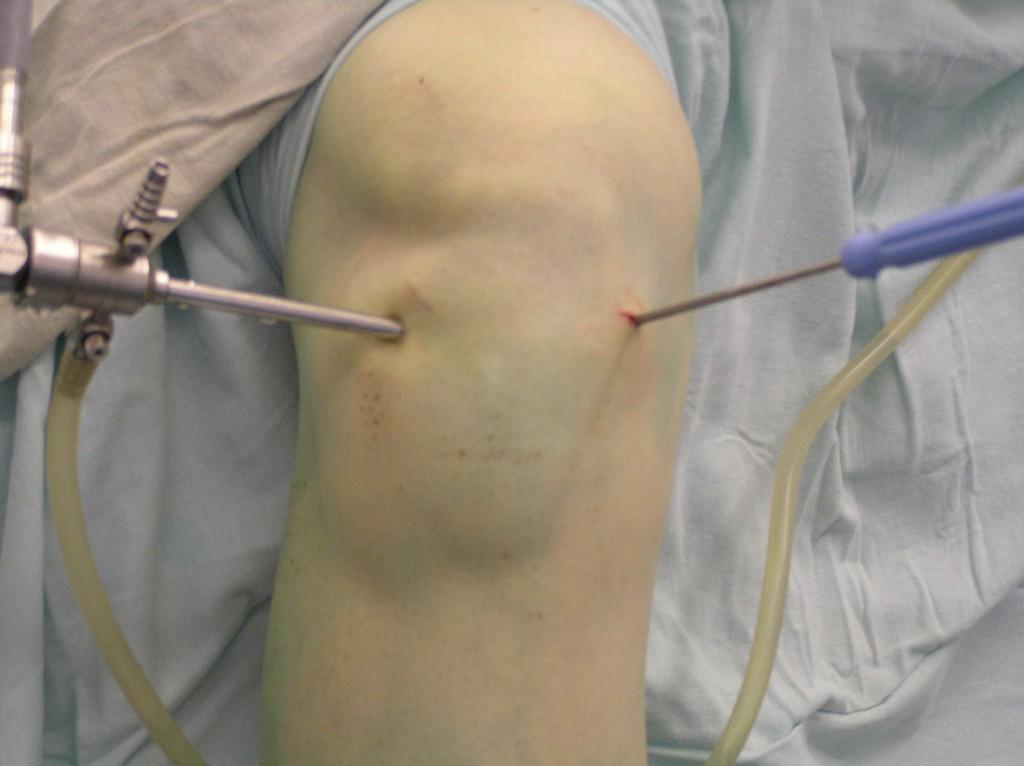 Как вылечить коленные суставы с помощью артроскопии?