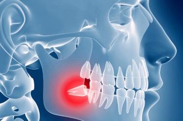 Атипичное удаление зубов в стоматологической клинике