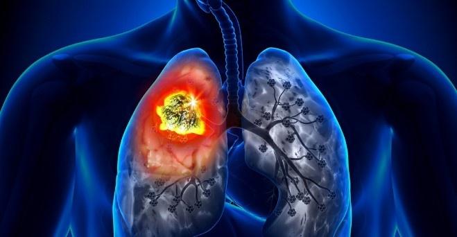 Не оставьте онкологии шансов: правила для здоровых легких