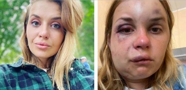 """Внезапно умер мужчина , который напал на журналистку в поезде """"Мариуполь – Киев"""""""